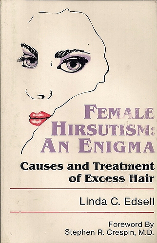 Female Hirsutism: An Engima